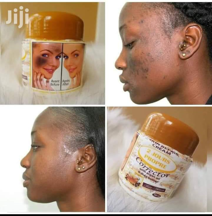 Skin Corrector Cream | Skin Care for sale in Nairobi Central, Nairobi, Kenya