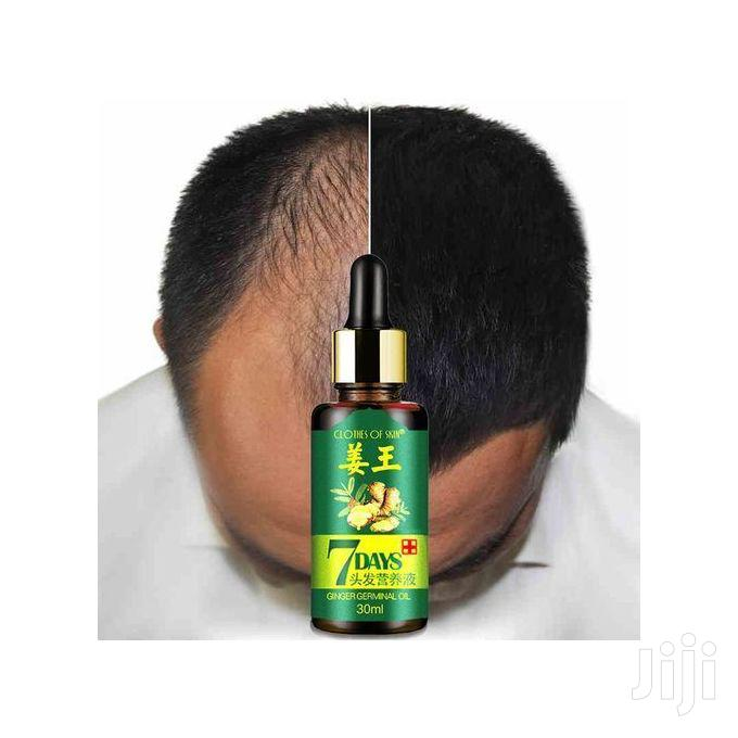 7 Days Ginger Hair Follicles Activator and Growth Essence