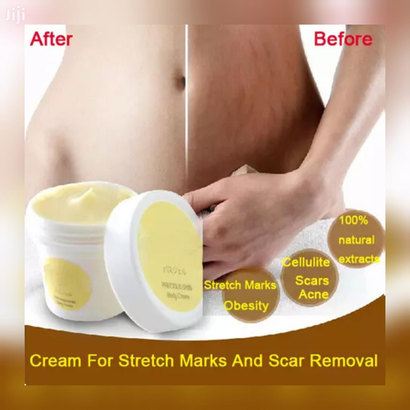 Archive: Bye Stretchmarks And Scars