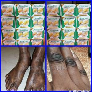 Removes All Dark Spots and Dark Knuckles   Skin Care for sale in Nairobi, Roysambu