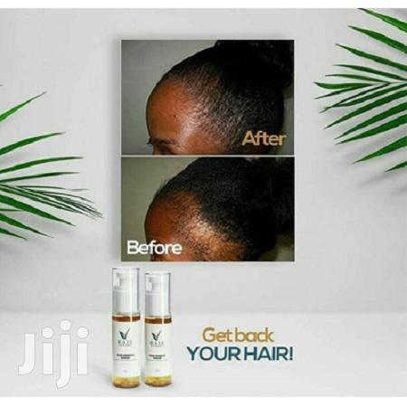 Hair Now Now- Hair Growth Serum   Hair Beauty for sale in Nairobi Central, Nairobi, Kenya