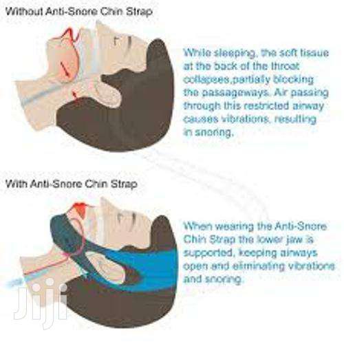 Archive: Antisnoring Strap Stop Snoring 1500